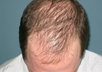 tell you how to prevent balding, stop hair loss and let your hair grow again
